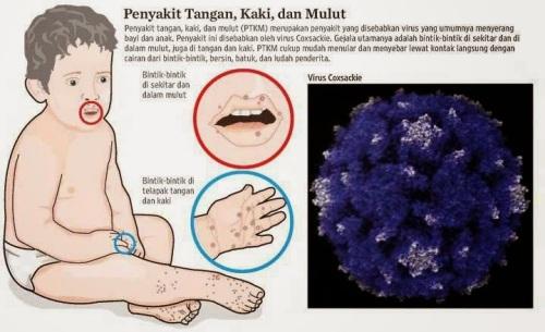 Gejala Flu Singapura